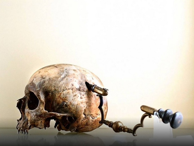 2.) Trepanning: Here the doctor would drill a giant hole in the patient's head for this was believed to cure epilepsy and other mental disorders. But you know, it would also cause create the symptoms of having a giant hole in your brain, so...