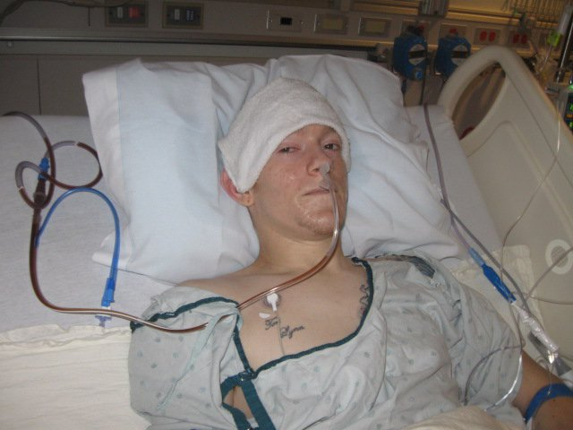 This was me two years ago, looking pretty haggard after a 6-hour surgery.  Why did I have surgery, you ask?  In Oct 2010 I was diagnosed with Stage III Testicular Cancer.  I had five surgeries & three months of chemotherapy - My last round of chemo was actually on Dec 31st.  In this surgery, they had to remove two teratoma tumors located between my spine & the body's two main blood vessels. Only 1 surgeon in the state was willing to perform this surgery due to the location of these tumors.  This was the moment I was 100% rid of cancer!